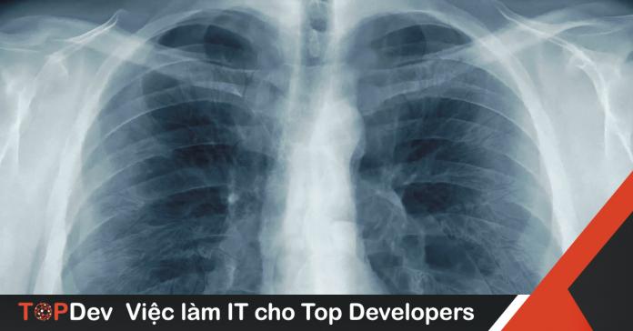 Chẩn đoán bệnh viêm phổi từ ảnh chụp X-Quang bằng Deep learning